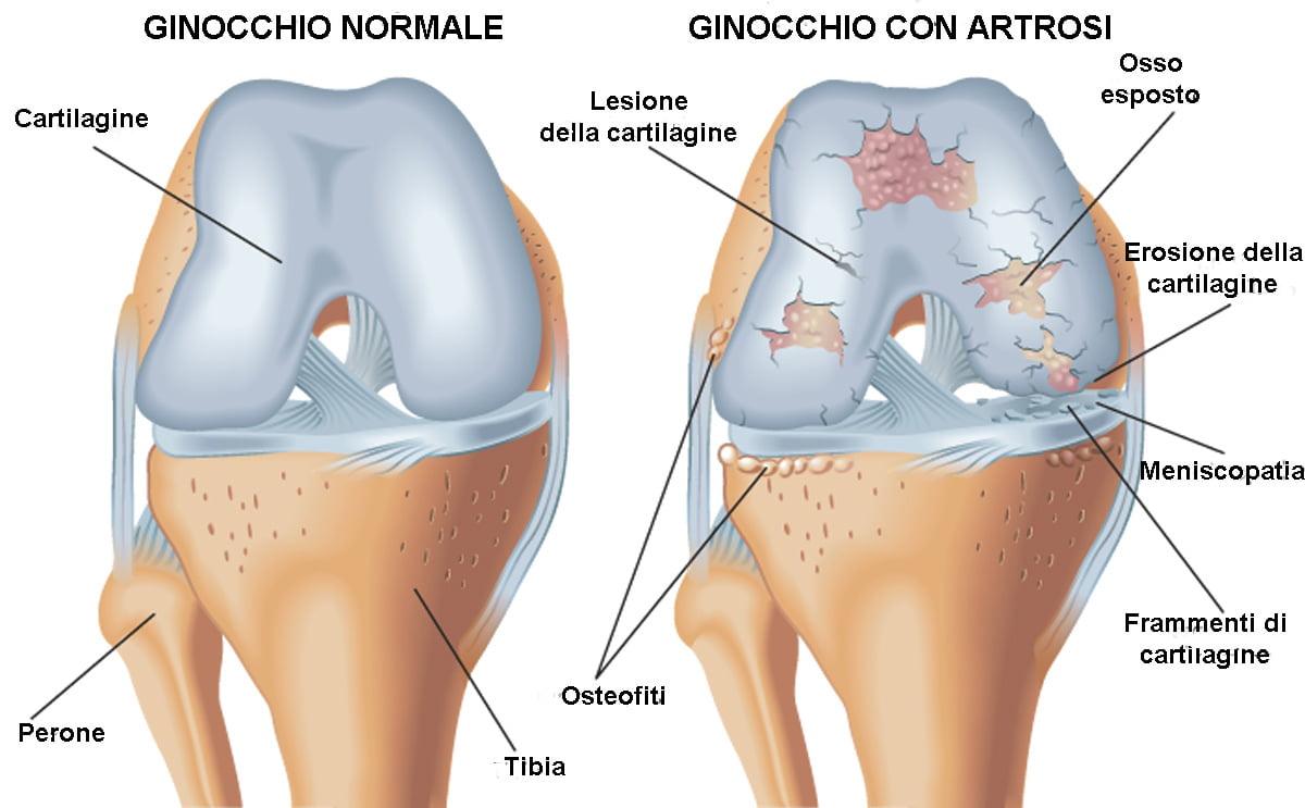 Acido ialuronico - artrosi del ginocchio