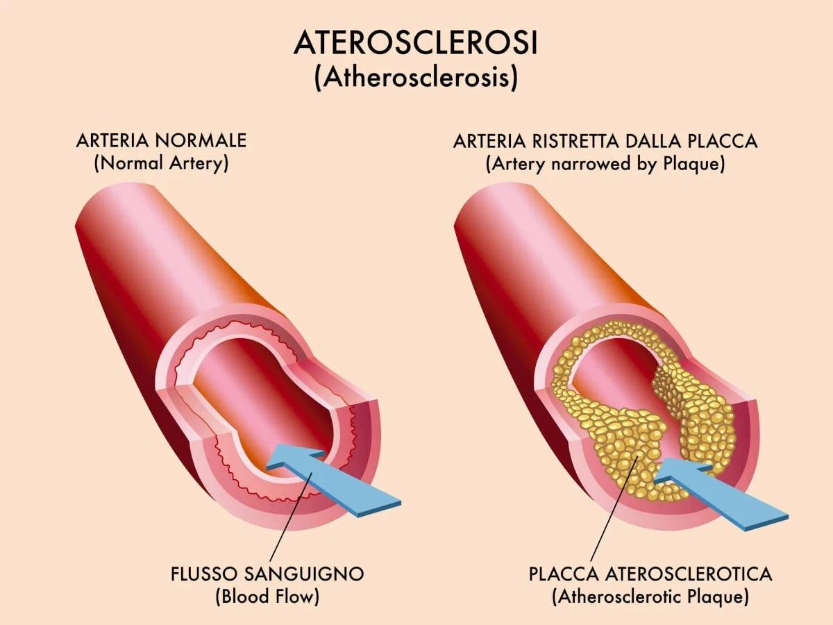 Dieta per aterosclerosi
