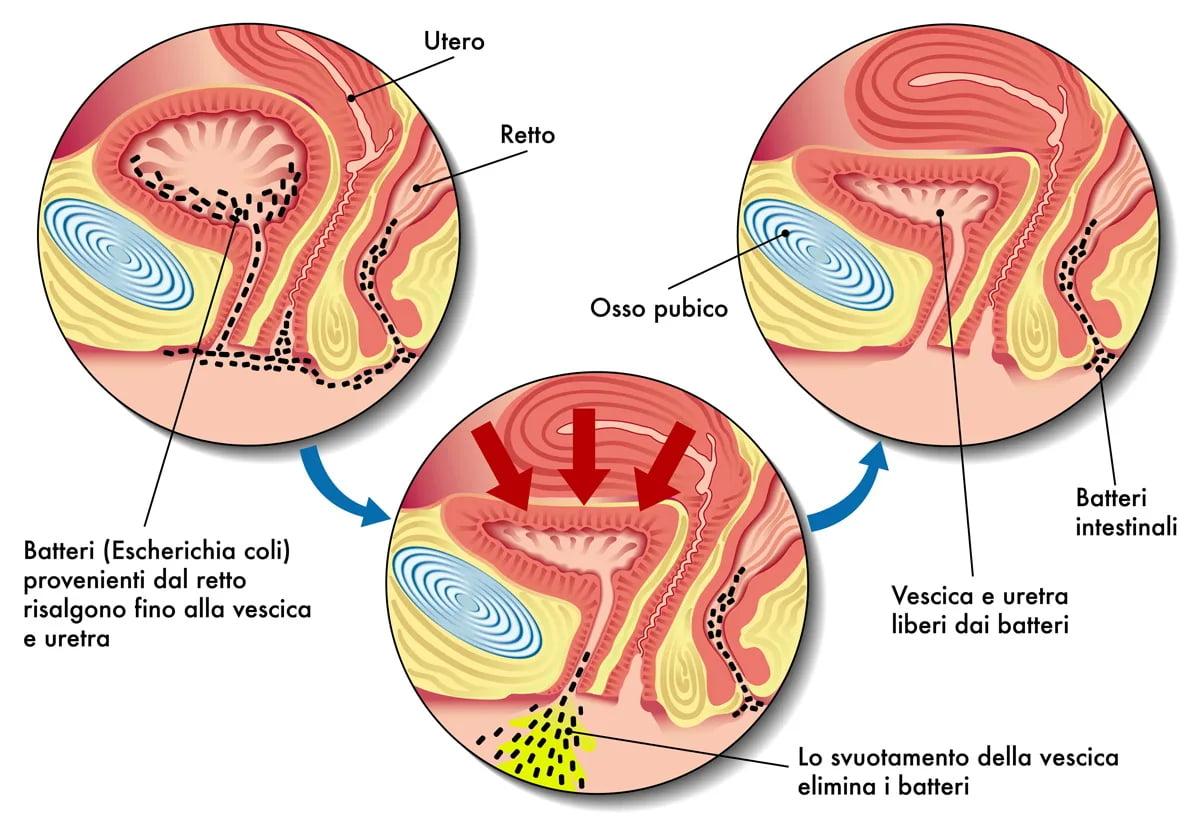 Dieta per le infezioni urinarie