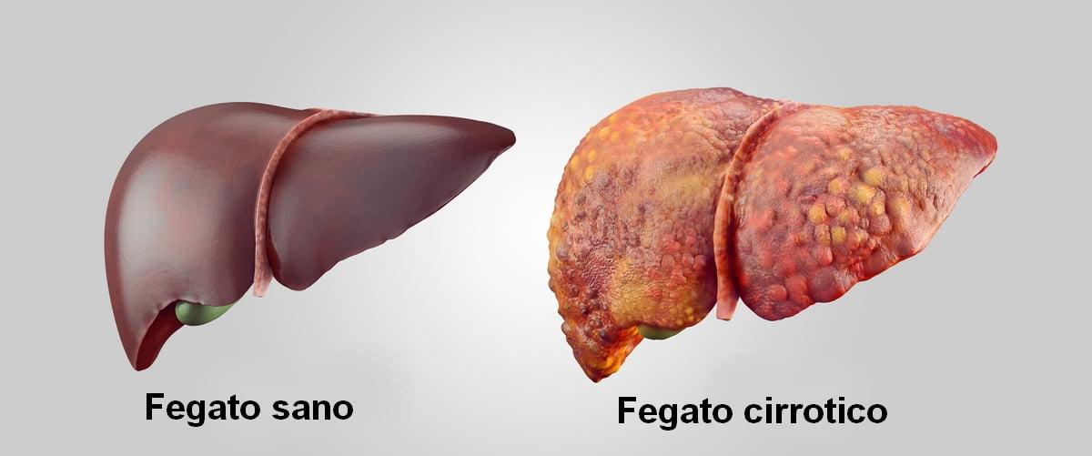 Dieta per la cirrosi epatica